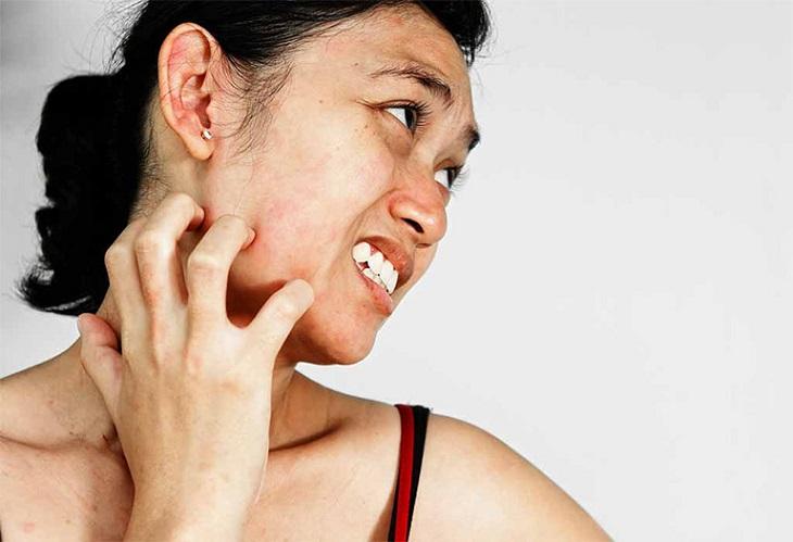 Da mặt mẩn ngứa gây mất thẩm mỹ và làm tăng nguy cơ nhiễm trùng da, hỏng da