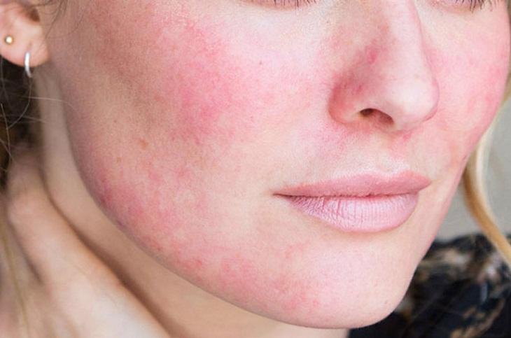 Dị ứng khiến da mặt nổi đỏ nhưng không ngứa