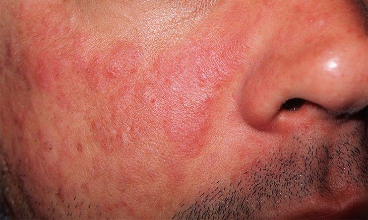 Da mặt không ngứa nhưng nổi mẩn đỏ là do lupus ban đỏ