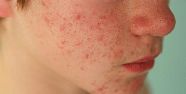 Nổi mẩn đỏ không ngứa trên da có thể do mẫn cảm với dị nguyên