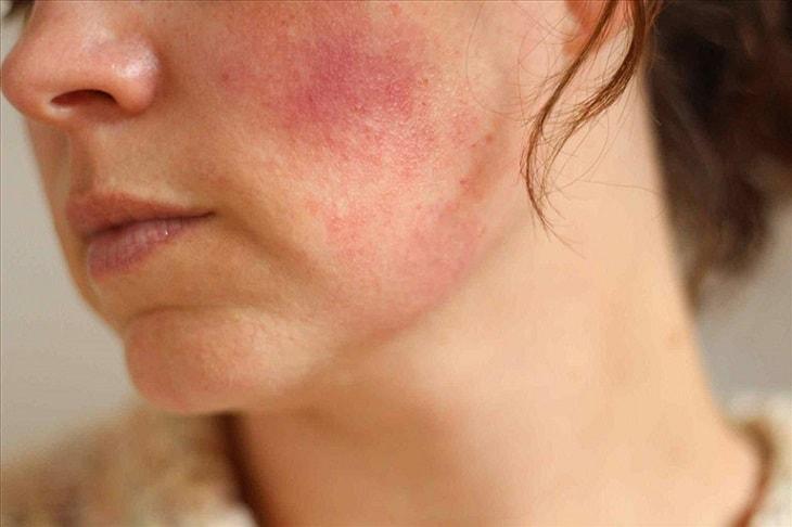 Da mặt bị nhiễm corticoid có nhiều cấp độ khác nhau