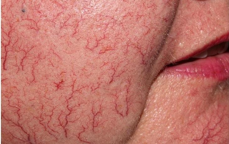 Da bị nhiễm corticoid nặng sẽ bị giãn mạch máu, cần cai nghiện cho da