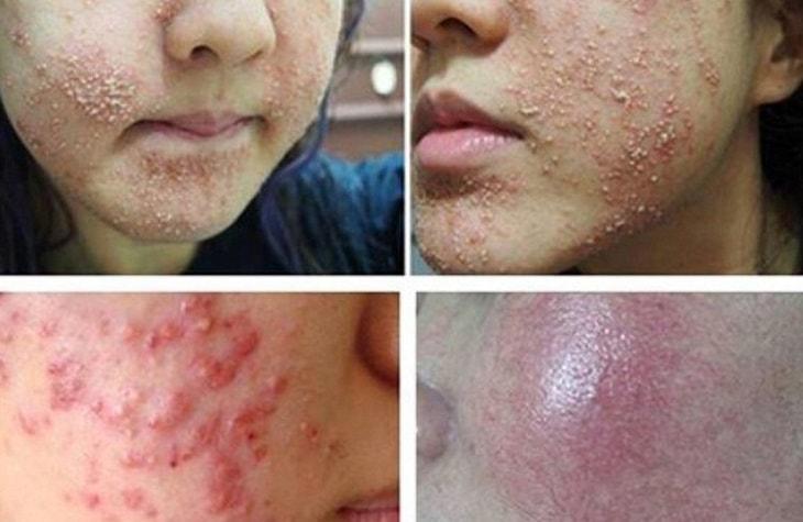 da mặt bị nhiễm corticoid phải làm sao