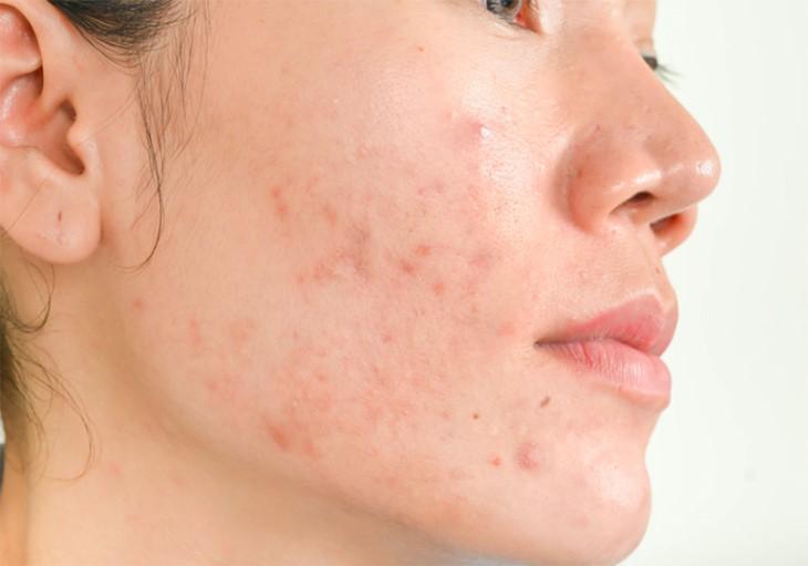 Da mặt bị ngứa và nổi mụn do thay đổi nội tiết