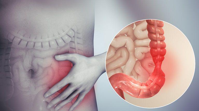 Hội chứng ruột kích thích là căn bệnh thường gặp