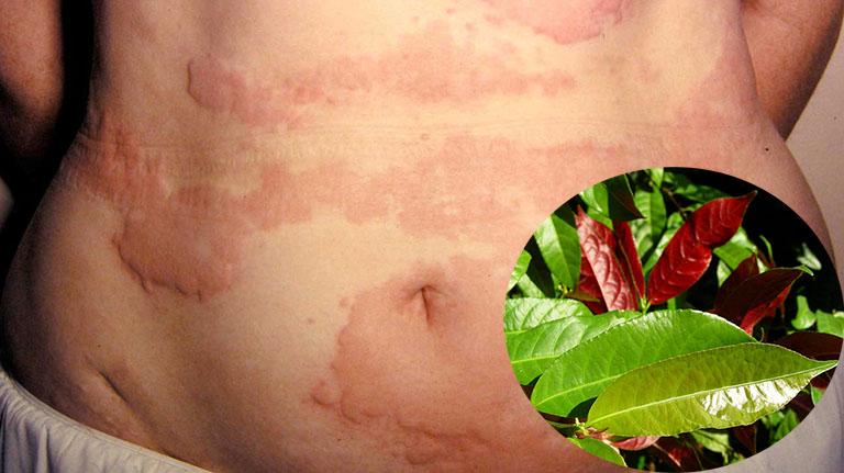 Kiên trì áp dụng để thấy hiệu quả chữa mề đay từ cây lá đơn đỏ