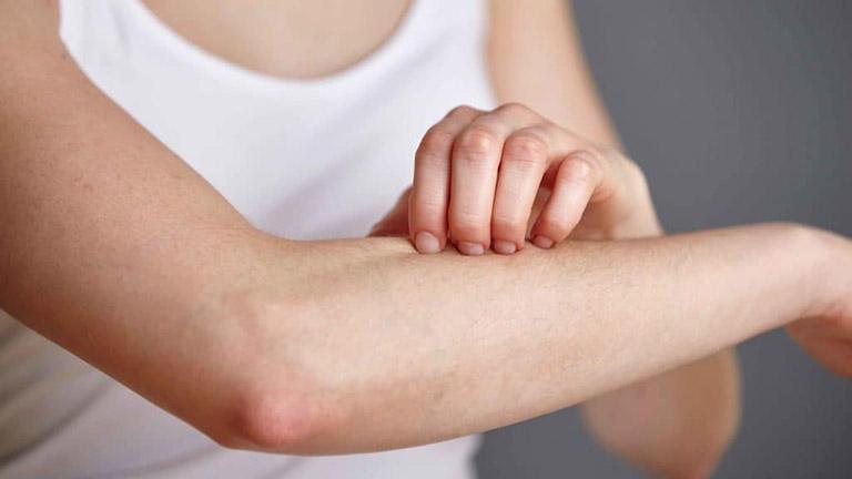 Mề đay là bệnh có thể gặp ở bất cứ ai, hãy chữa sớm để loại bỏ triệu chứng khó chịu do bệnh gây ra