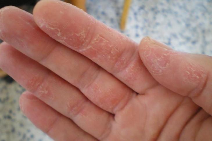 Ánh nắng mặt trời gây ra tình trạng bỏng da, rất có hại