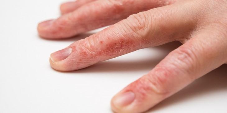 Lột da tay bị ngứa do viêm da tiếp xúc là căn bệnh dễ mắc, khó chữa
