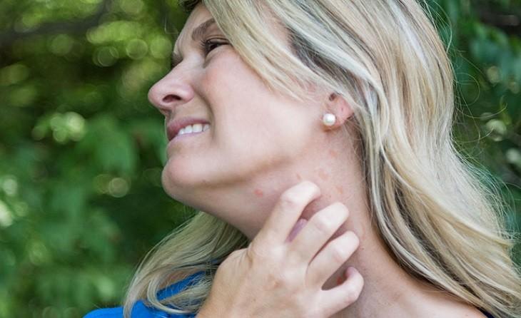 Nổi mẩn ngứa sau sinh có thể xuất hiện ở một số bộ phận hoặc toàn bộ cơ thể