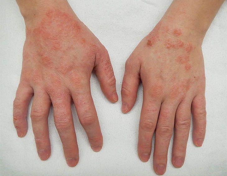 Viêm da cơ địa gây ngứa chân tay khó chịu, nổi nhiều nốt đỏ không đều nhau.