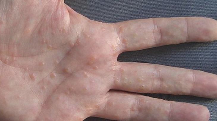khi bị bệnh chàm tổ đỉa, trên tay và chân người bệnh sẽ xuất hiện nhiều mụn nước nhỏ và ngứa.
