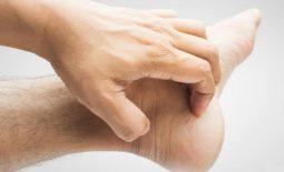 Ngứa chân tay là bệnh gì? Nguyên nhân và cách điều trị