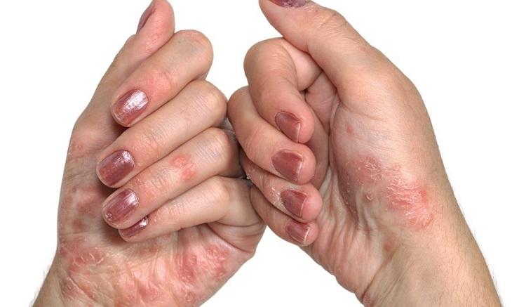 Bệnh vảy nến không chỉ xuất hiện ở đầu và cổ, mà còn lan xuống tay chân.