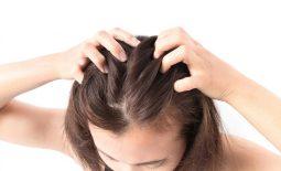 Ngứa da đầu là bệnh gì? Nguyên nhân và cách chữa trị