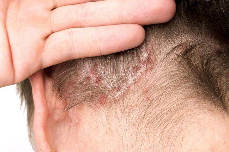 Bệnh vảy nến gây ngứa rát da đầu