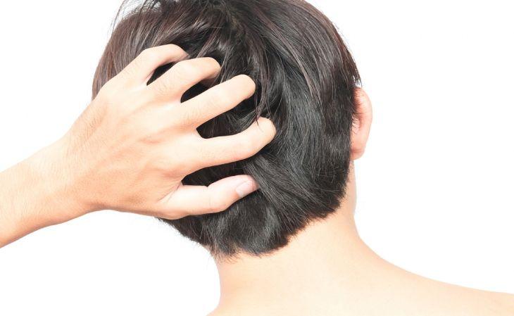 Ngứa da đầu có thể xảy ra do nhiều nguyên nhân