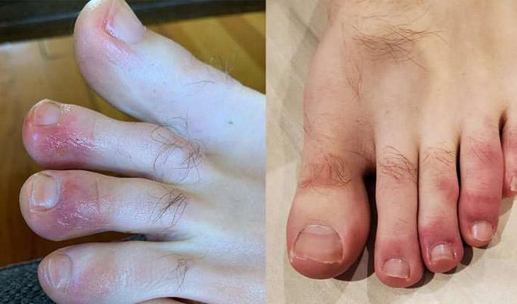 Ngứa đầu ngón tay ngón chân do bệnh chàm