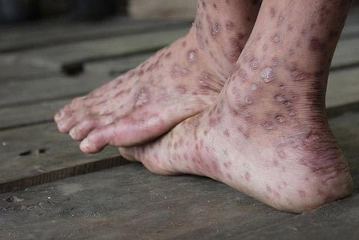 Bệnh ghẻ trên chân gây ngứa
