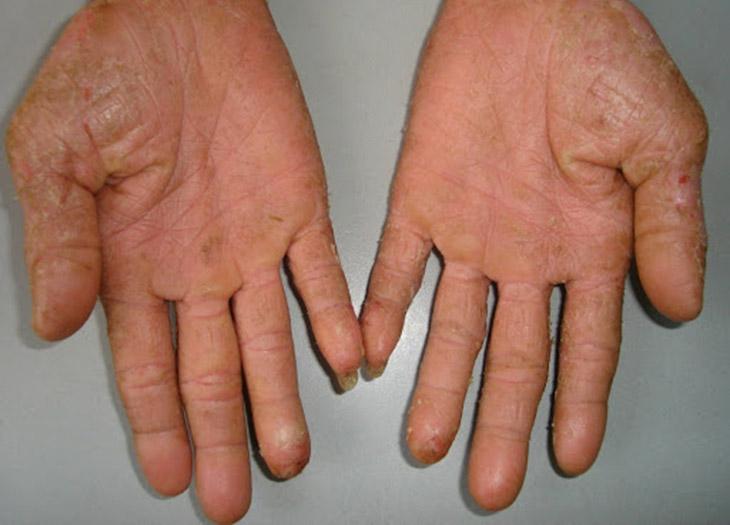 Bệnh chàm là một trong những nguyên nhân gây ngứa gan bàn tay bàn chân