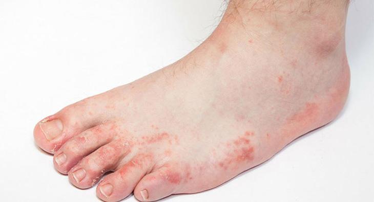 Ngứa bàn chân nói chung và gót chân nói riêng do ghẻ