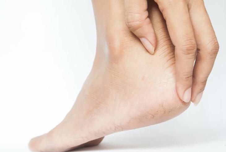 Gót chân bị ngứa, khó chịu do nhiều bệnh lý da liễu