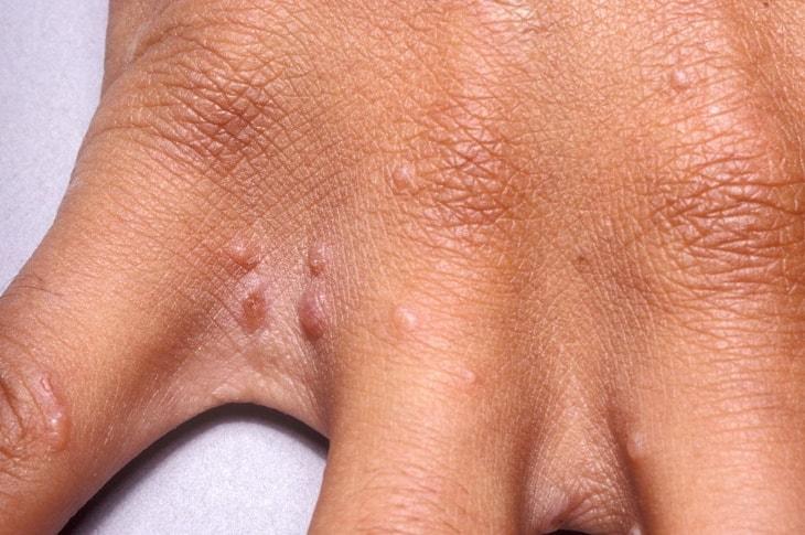 Xuất hiện nhiều mụn nước nhỏ ti trên các ngón tay, ngón chân