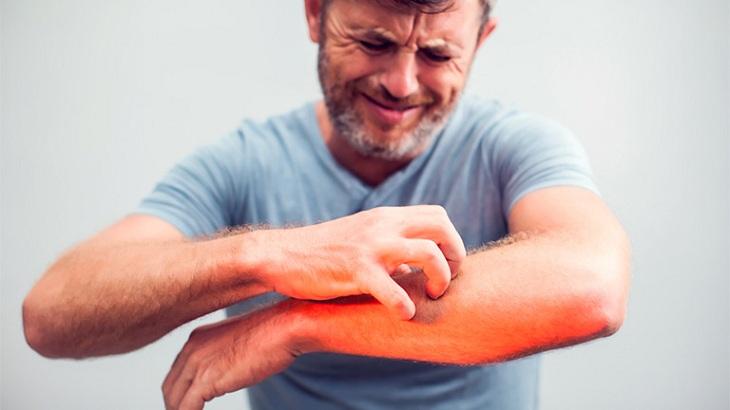 Vệ sinh không sạch sẽ là nguyên nhân gây ngứa khắp người