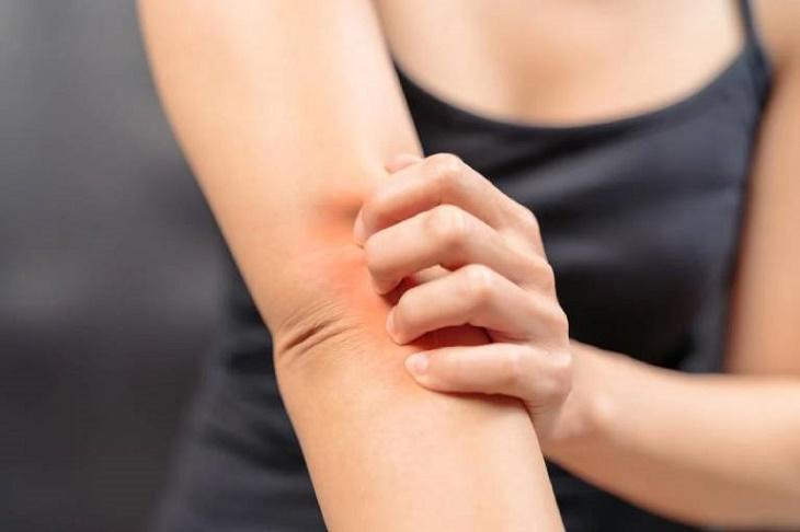 Ngứa khắp người không nổi mẩn là dấu hiệu cảnh báo sức khỏe đang nguy hại