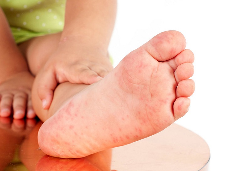 Viêm da cơ địa gây ngứa ngáy và nổi mẩn ở lòng bàn tay, bàn chân