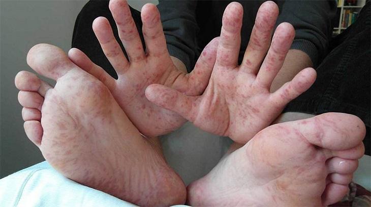 Chức năng gan, thận suy giảm cũng có thể khiến chân tay bị nổi mẩn ngứa