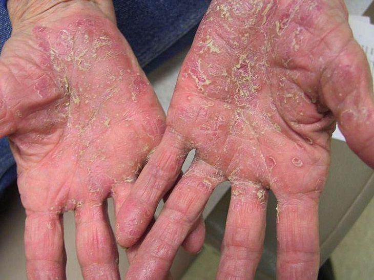 Bệnh vảy nến ở lòng bàn tay bàn chân gây nhiều khó chịu và mất thẩm mỹ
