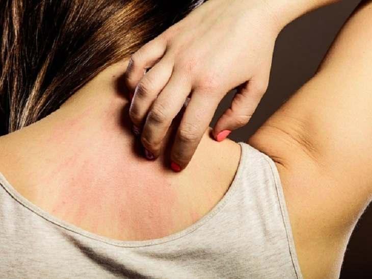 Lưng bị ngứa do bệnh lý về gan, thận