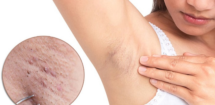 Nách bị ngứa có thể do mắc bệnh ngoài da