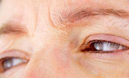 Vùng da quanh mắt bị khô ngứa gây khó chịu cho người bệnh