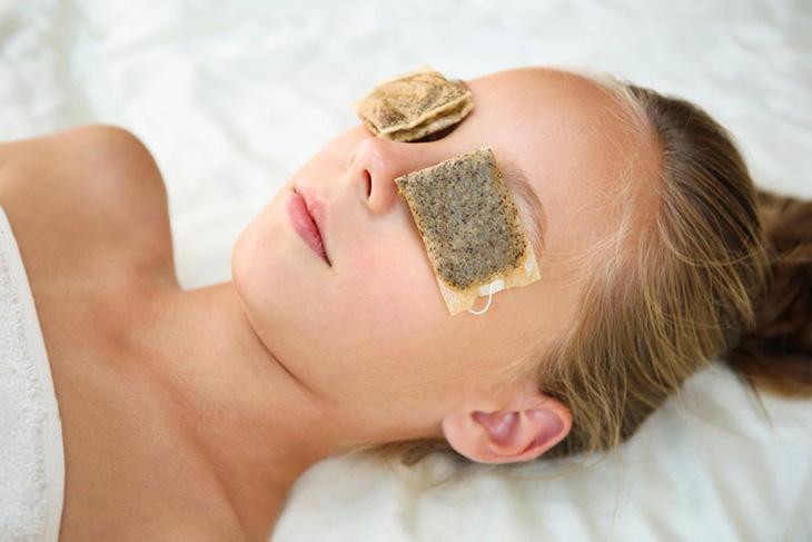Đắp túi trà để điều trị ngứa vùng da quanh mắt