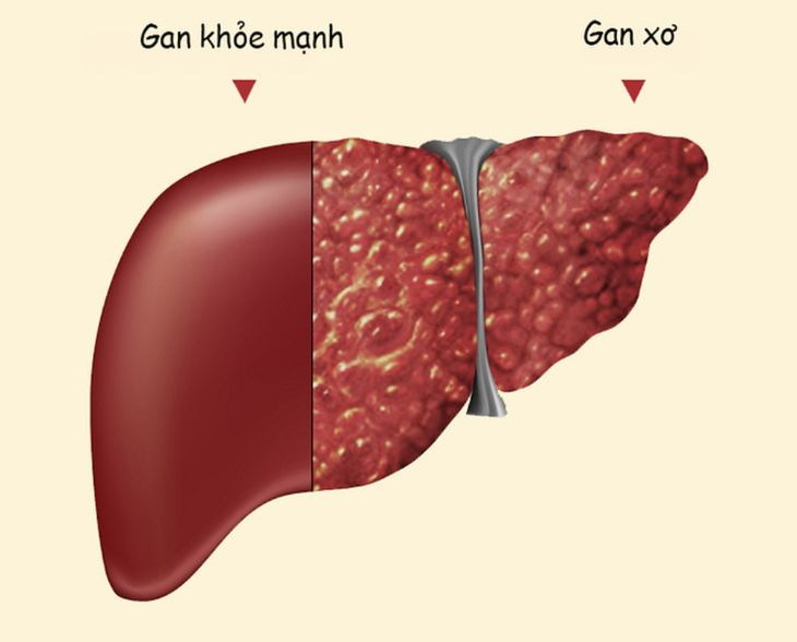 Khi khả năng đào thải độc tố của gan bị ảnh hưởng có thể dẫn tới bệnh ngứa da
