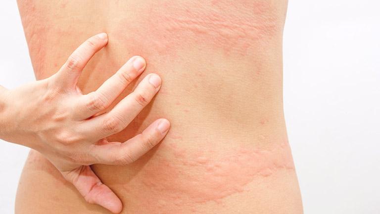 Cần chú ý phòng tránh bệnh mề đay hiệu quả