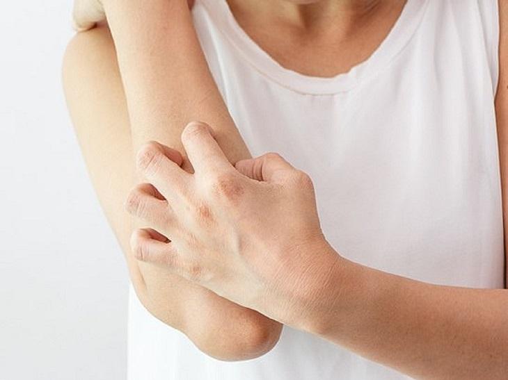 Nổi mề đay ở tay chân gây ngứa ngáy ảnh hướng tới chất lượng cuộc sống