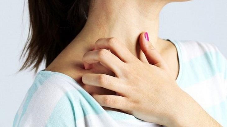 Nổi mề đay sau sinh có thể xảy ra ở phụ nữ sinh thường hoặc sinh mổ