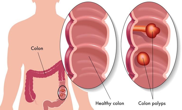 Hình ảnh các loại polyp đại tràng