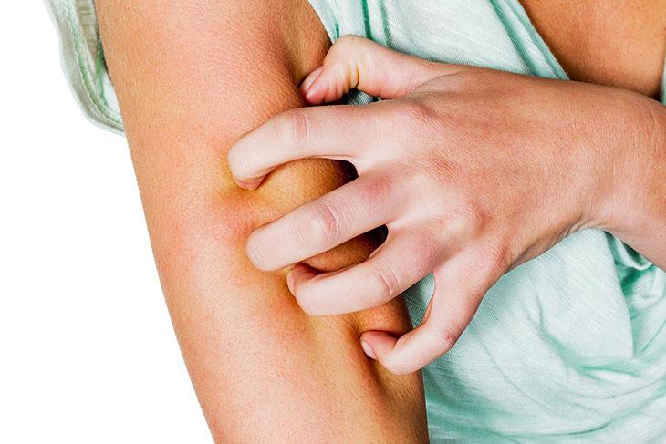 Không nên gãi mạnh tay có thể làm tổn thương da