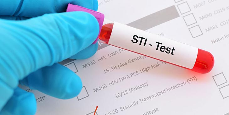 Xét nhiệm STIs để biết cơ thể có bị lây nhiễm bệnh tình dục hay không