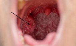 Sưng amidan - dấu hiệu cảnh báo các nguy cơ bệnh lý hô hấp