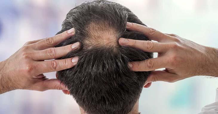 Thuốc chống rụng tóc ảnh hưởng trực tiếp đến sinh lý nam giới