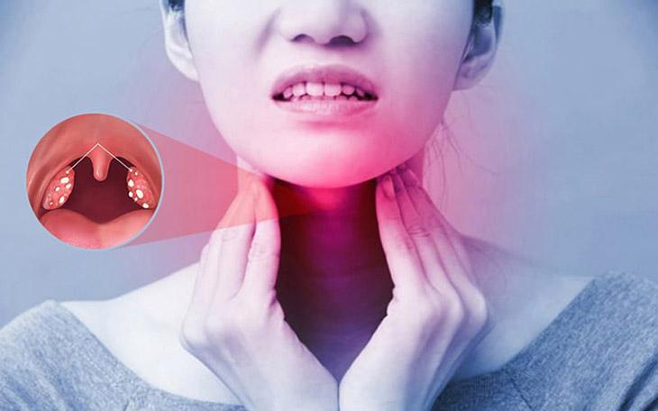 Thuốc đặc trị viêm amidan hốc mủ cần dùng theo chỉ định của bác sĩ