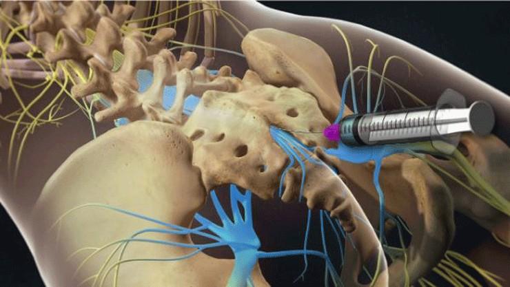 Mũi tiêm màng cứng giảm đau nhức xương khớp