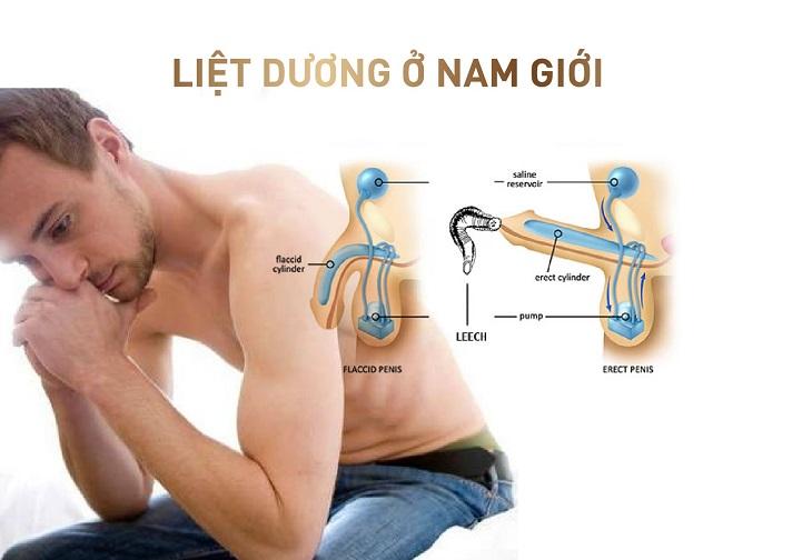 Tình trạng liệt dương ở nam giới ảnh hưởng nhiều đến sức khỏe và tâm lý phái mạnh