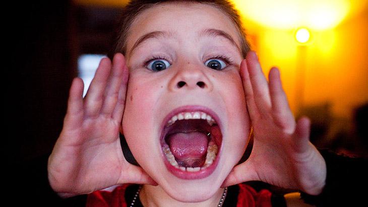Viêm amidan mãn tính thường gặp ở thanh thiếu niên, hiếm khi gặp ở trẻ dưới 2 tuổi