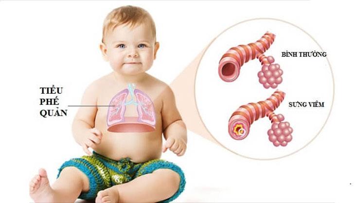 Viêm phế quản là một trong những biến chứng khi trẻ bị viêm amidan quá phát